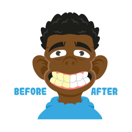 Black young boy show mouth with great teeth before and after care cleaning treatment and whitening Healthy smile Vector modern flat cartoon character illustration white background dentist concept  イラスト・ベクター素材