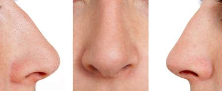 nasen: Aquiline Nase links, vorne, rechts