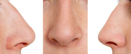 nosa: Orli nos w lewo, w przód, w prawo