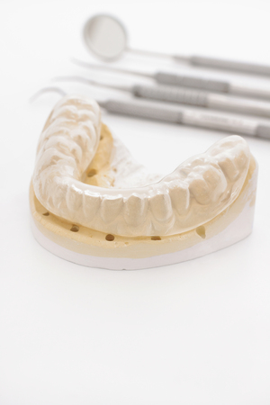 plaster mould: Orthodontic or maxillary cast with a bruxism  guard