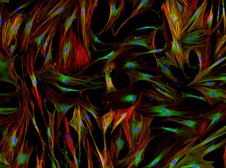 celulas humanas: fluorescencia real vista microscópica de células humanas - fibroblastos humanos de pulmón Foto de archivo