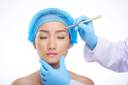 Doctor drawing perforation lines on face of patient before surgery Stock Photo