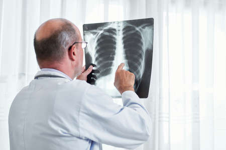 Radiologist examining lungs x-ray of patient and searching for signs of cancer