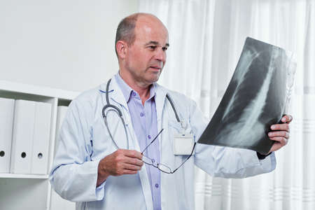 Serious Caucasian radiologist taking off glasses and looking at lungs x-ray in his hand