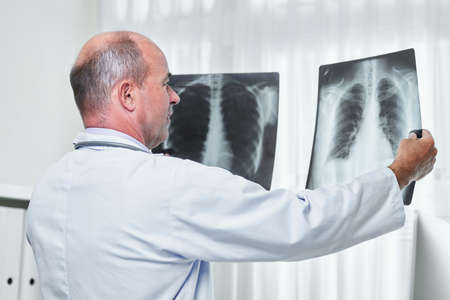 General practitioner comparing two chest x-rays of patient with pneumonia