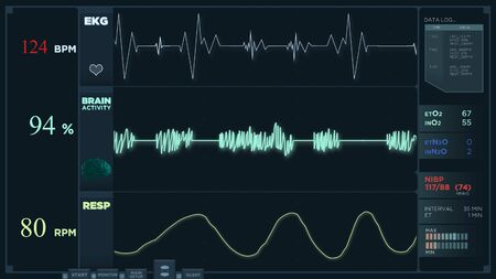Animation of a fast electrocardiogram reading display. The heartbeats are getting more intense