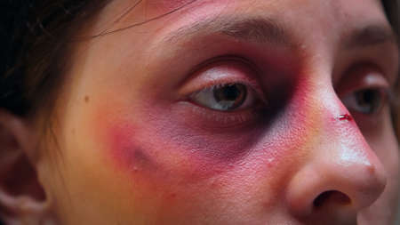 Close up of abused woman face with bruise. Traumatised hit terrified helpless, vulnerable, beaten wife suffering injury from alcoholic violent brutal husband. Banque d'images