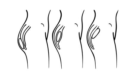 illustration of gluteal plastic surgery types - buttocks implants positions chart: submuscular, intramuscular and subcutaneous implantation.