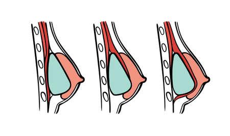 Ilustración de tipos de cirugía plástica - tabla de posiciones de implantes: implantología submuscular, subglandular y subfacial. Ilustración de vector
