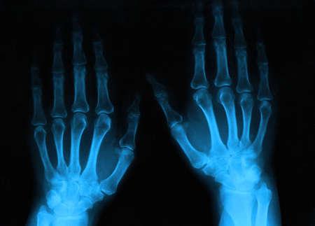 artritis: las manos del hombre Foto de archivo