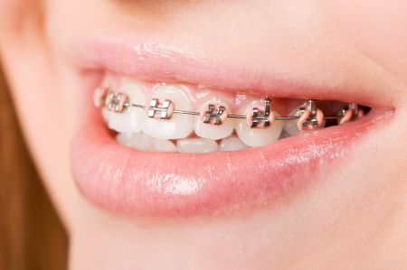 Beautiful young woman with brackets on teeth close up photo
