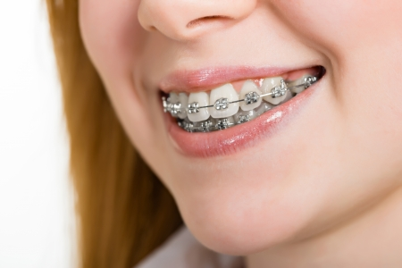 crooked teeth: Beautiful young woman with brackets on teeth close up