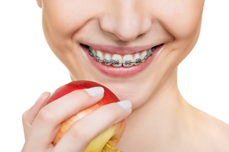 woman with brackets on teeth close up Stock Photo - 18299537