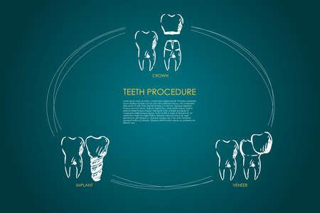 Teeth procedure - crown, veneer, implant vector concept set. Hand drawn sketch isolated illustration