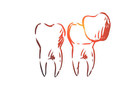 Veneer, dental, care, dentistry, whitening concept. Hand drawn veneers for teeth treatment concept sketch. Isolated vector illustration.