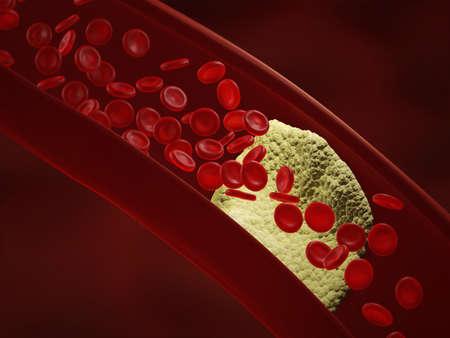 atherosclerosis: The accumulation of fatty streaks. Arteriosclerotic vascular disease. Atherosclerosis