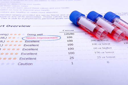test result: Blood in tubes with lab test result