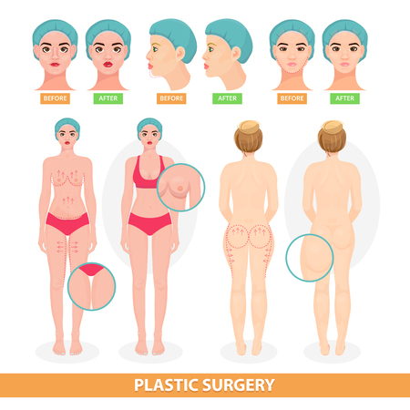 Plastic surgery illustration