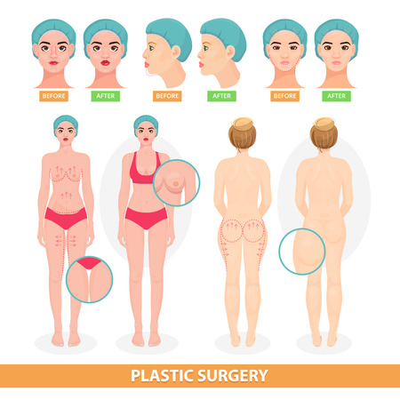 手術前の整形外科ベクター患者女性は、外科的に、または乳房や顔のアンチエイジングリフトは、白い背景に隔離された外科医のイラストの並ぶ
