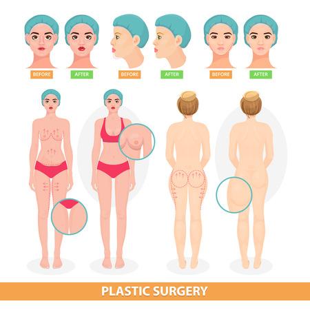 외과 수술 facelifting 또는 얼굴 안티 에이징 리프트 외과 또는 유방 및 얼굴 전에 외과 그림 흰색 배경에 절연 성형 수술 벡터 벡터 환자 여자