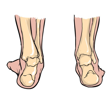Supination of feet andPronation of feet 向量圖像