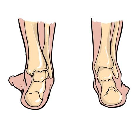 big toe: Supination of feet andPronation of feet Illustration