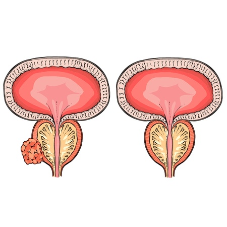 infertility: Prostatic hypertrophy