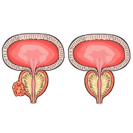 prostatic: Prostatic hypertrophy