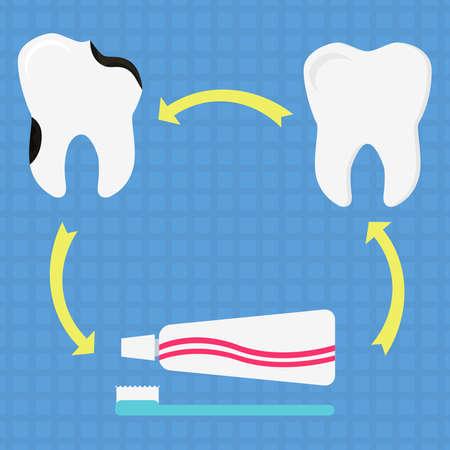 decayed teeth: diagrama circular con diente sano, diente cariado, cepillo de dientes y pasta de dientes. Que simboliza la prevenci�n de caries dentales a trav�s de cepillarse los dientes. Dise�o plano.