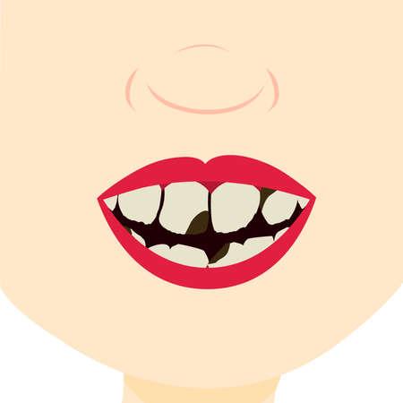 dientes sucios: Niño sonriendo y mostrando los dientes sucios, rotos y podridos. Cierre para arriba en la boca.