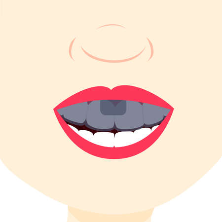 dental treatment: Smile and showing teeth with dental tray. Dental treatment.  Close up in the mouth. Illustration