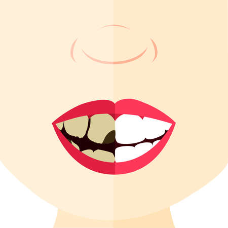 dirty teeth: Comparison between healthy and rotten tooth. Face divided in half.