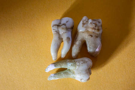 human molars with tooth roots