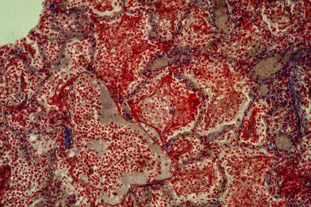 Pulmonary tuberculosis tissue under the microscope 200x