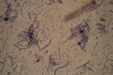 Rod-shaped bacteria under the microscope 400x Stock fotó