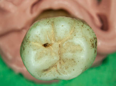 old molars of humans with tooth roots