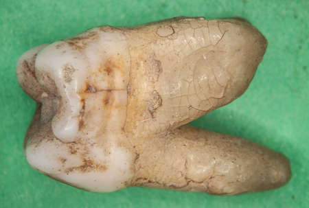 old molars of humans with tooth roots Banque d'images - 154980833