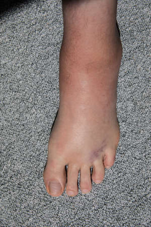 Severe swelling and hematoma of the left foot after bending and ligament stretching