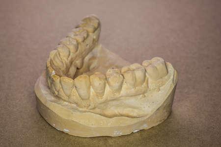 Lower jaw impression