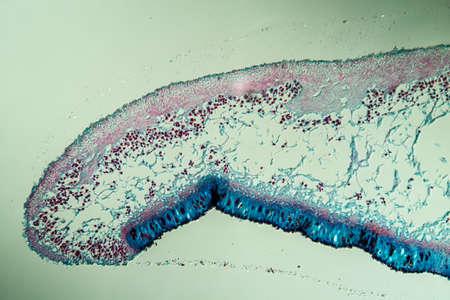 Cross-section through the lichen symbiote body 100x