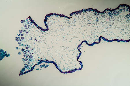 Cross-section through the lichen symbiote body 100x Banque d'images