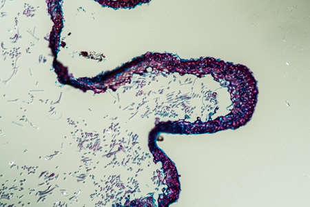 Cross-section through the lichen symbiote body 200x
