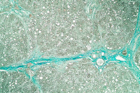 Rat liver 100x tissue section Banque d'images - 154886713