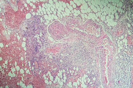 Colon inflammation in Crohn's disease 100x Banque d'images - 154885236