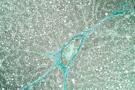 Rat liver 100x tissue section