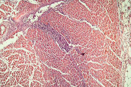 Cardiac muscle after infarction, tissue section 100x Banque d'images - 154886839