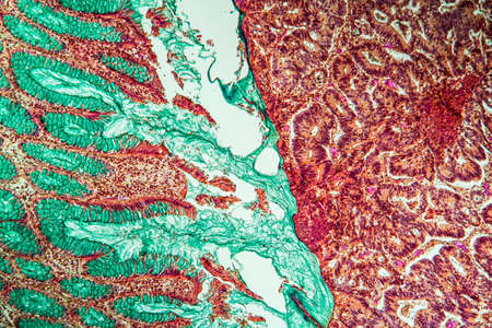 Intestine with villi and goblet cells Carcinoma tissue section 100x Banque d'images - 154886077