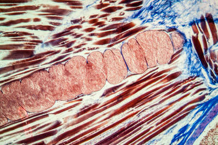 Miescher tubes in infected muscle tissue 100x