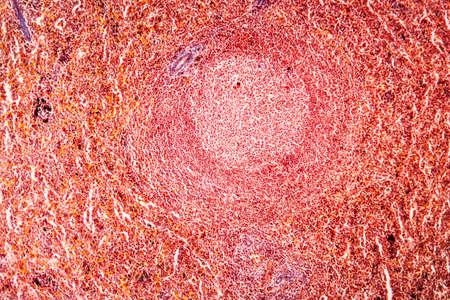 Malaria Melanemia Spleen Diseased Tissue 100x