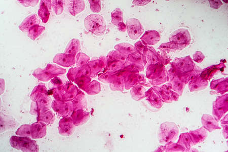 Epithelial cells with bacteria from the oral cavity 200x